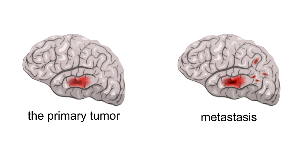 Brain cancer and metastasis