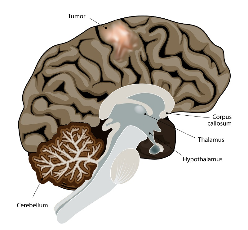Brain cancer image