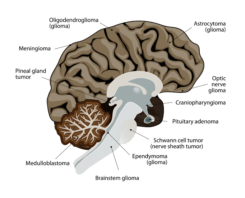 Most common types of brain cancer