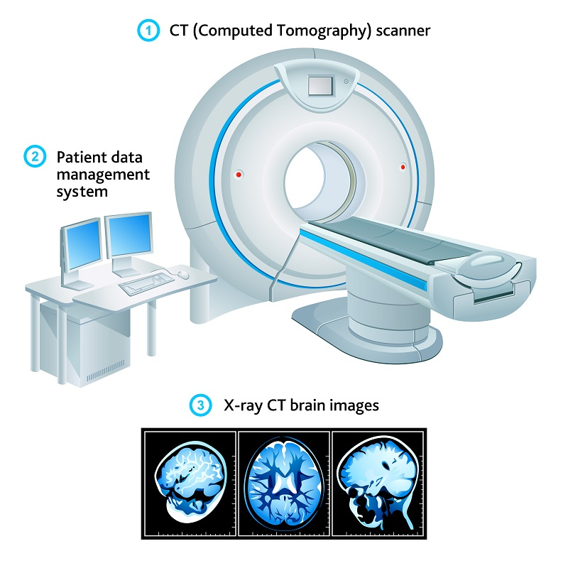 CT scan for brain cancer