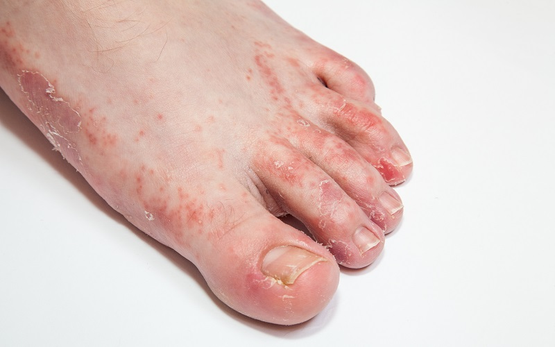 Dermatitis on foot