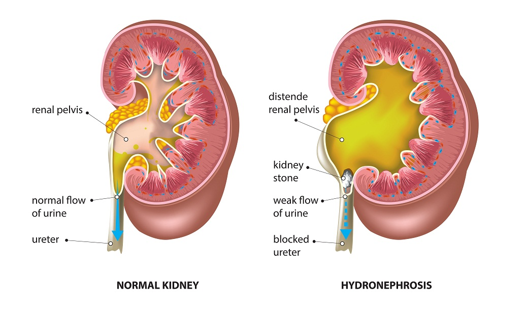 Cause of hydronephrosis- Kidney stone blocked ureter