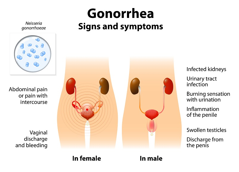 Gonococcol Infection