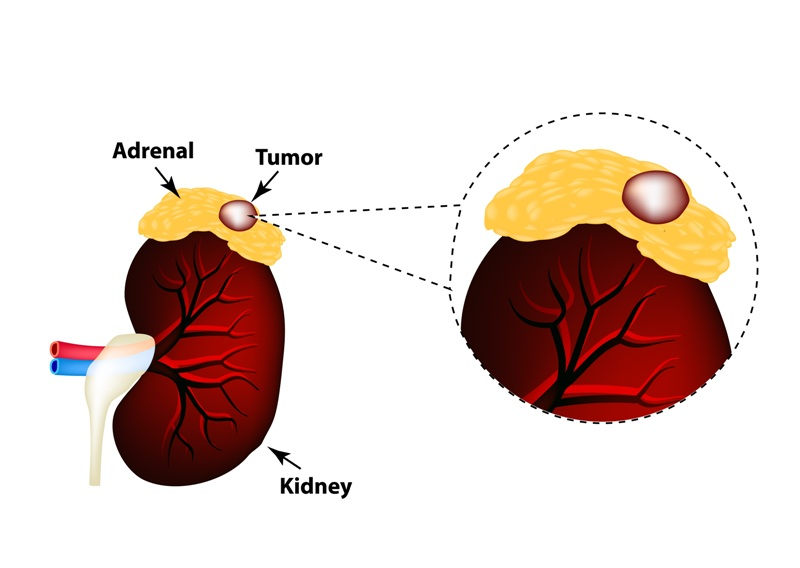 Neuroblastoma: A cancer of the adrenal glands