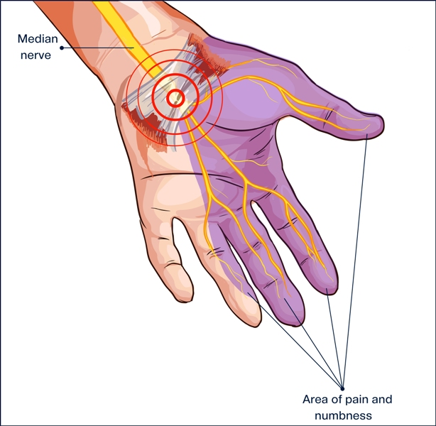 What is carpal tunnel median nerve?