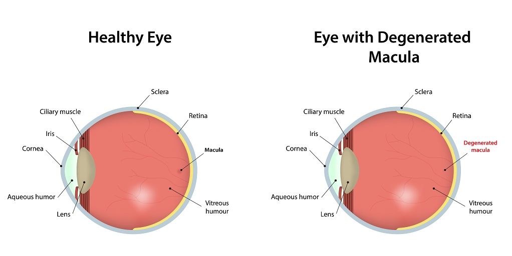 Healthy eye vs eye with macular degeneration (Stargardt Disease)