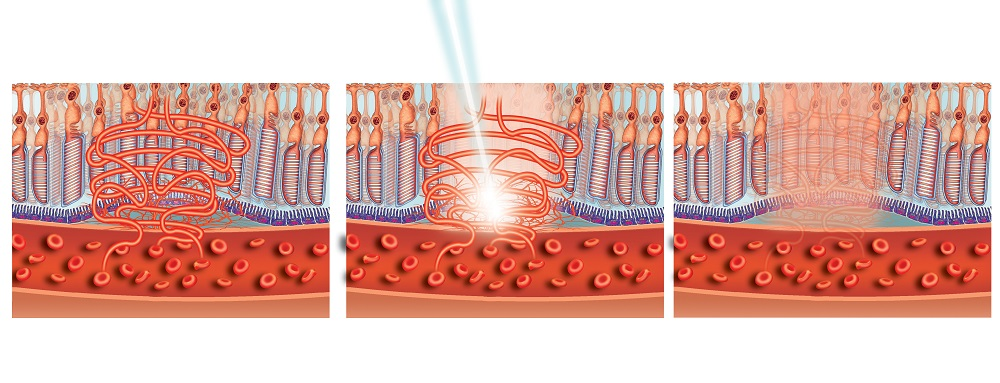 Laser treatment of macula
