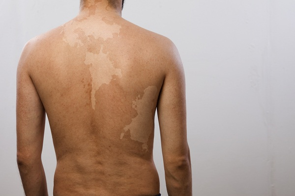 Vitiligo on back
