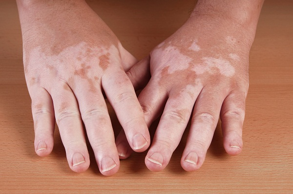 Vitiligo on hands