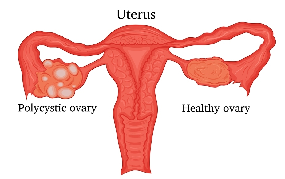 What is an ovarian cyst?