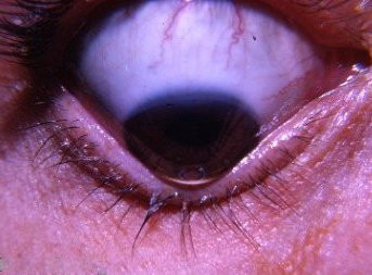 Keratoconus in the eye of a patient