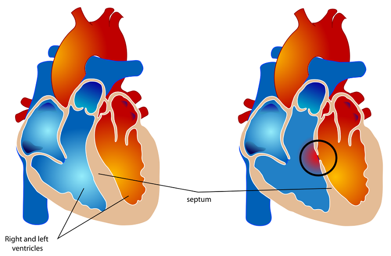 Normal heart vs a heart with ventricular septal defect (VSD)