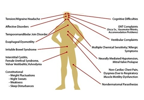 Regional symptoms and syndrome related to fibromyalgia