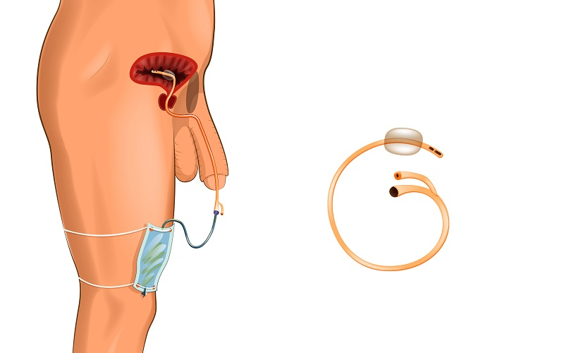 Foley catheter and urinary tract infection