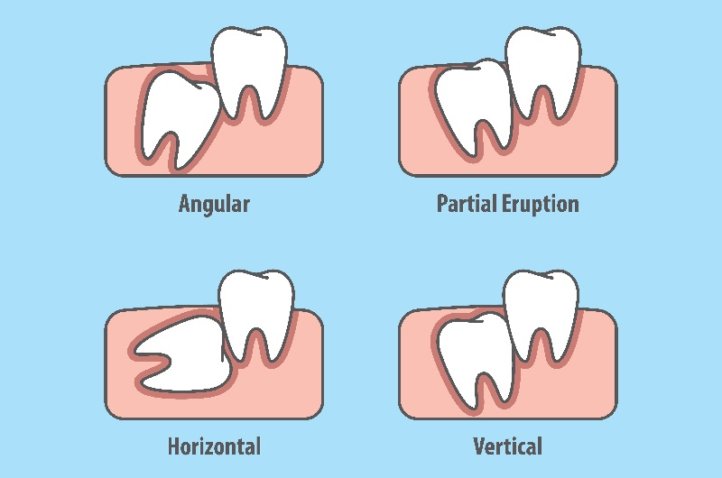 What is tooth impaction?