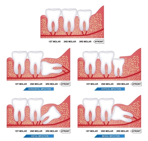 Set of impacted wisdom tooth and dental problems