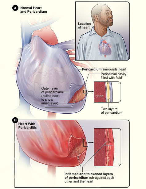Basics of pericarditis