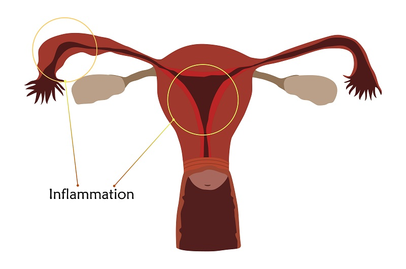 Pelvic inflammatory disease (PID) risk due to chlamydia