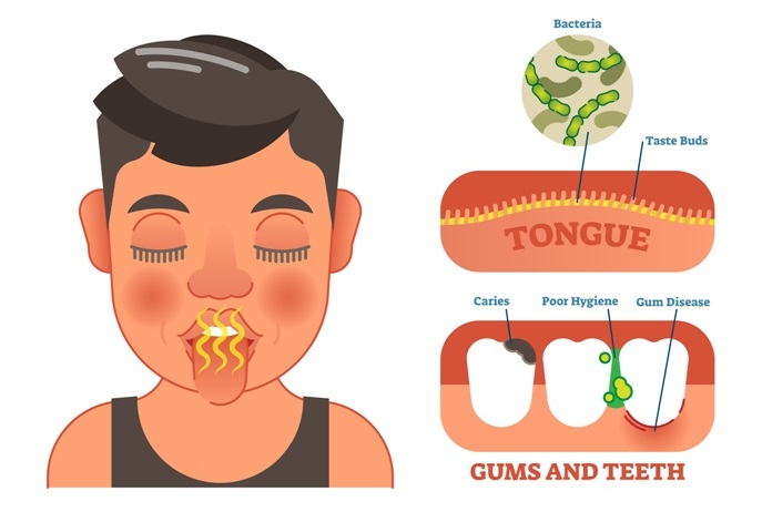 Disease Graphics, Videos & Images on Bad Breath