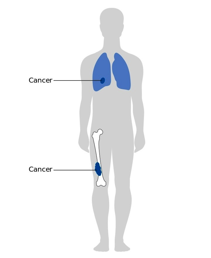 Image showing stage 3 bone cancer