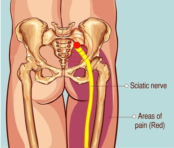 Sciatic nerve and pain locations