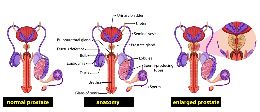 Male healthy prostate compared to an enlarged prostate