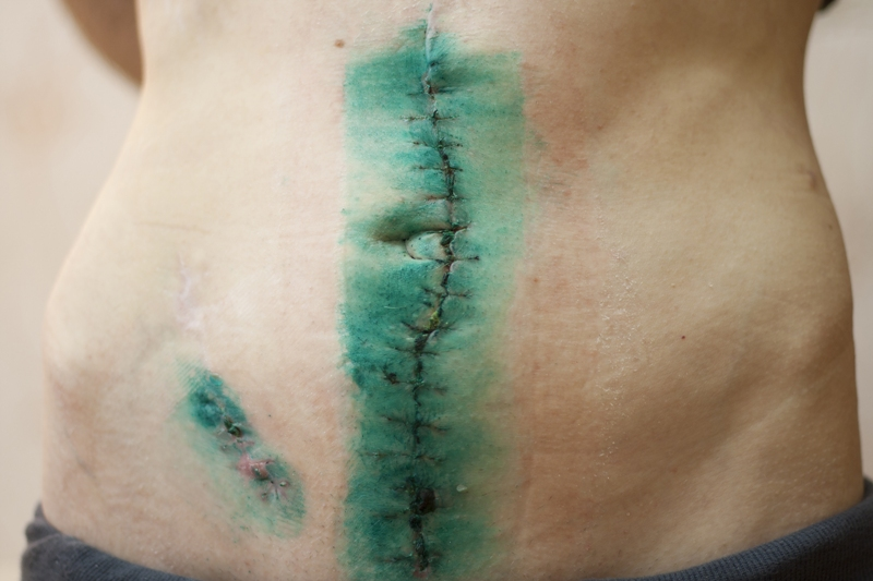 Scars after Crohn's surgery