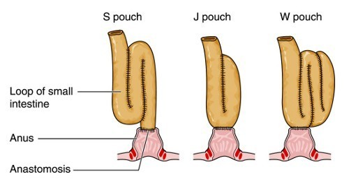 Colectomy and pouch formation