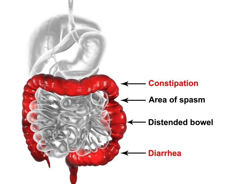 How does IBS affect your bowel?
