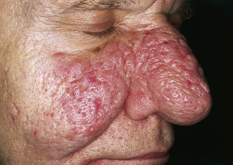 Rhinophyma: A Complication of Rosacea