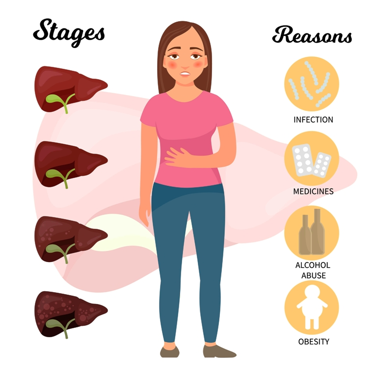 Stages and causes of cirrhosis of the liver