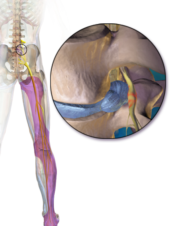 What is sciatica pinched nerve?