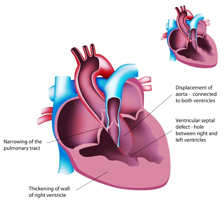 Congenital heart disease: Tetralogy of Fallot