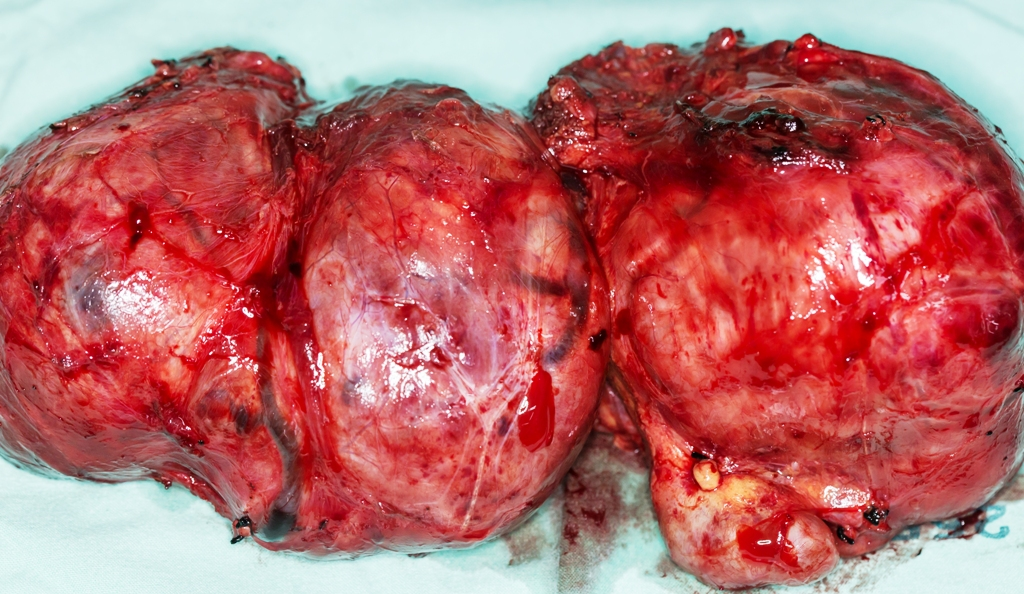 Close-up view of a large thyroid gland removed after the operation
