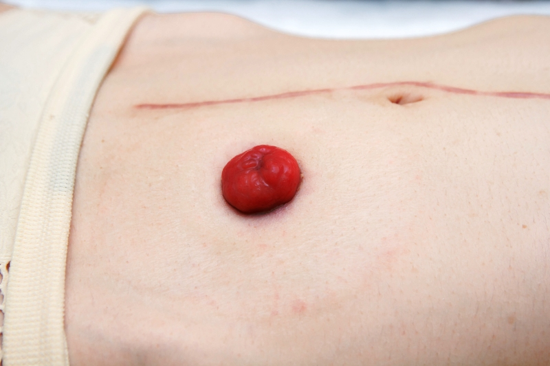 Side view closeup stoma with long abdominal surgical scar, after
