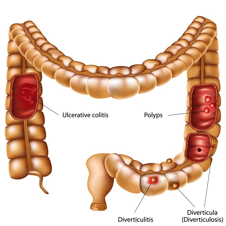 Colon diseases image
