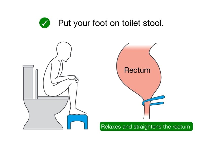 Illustration about correct posture while sitting on toilet seat