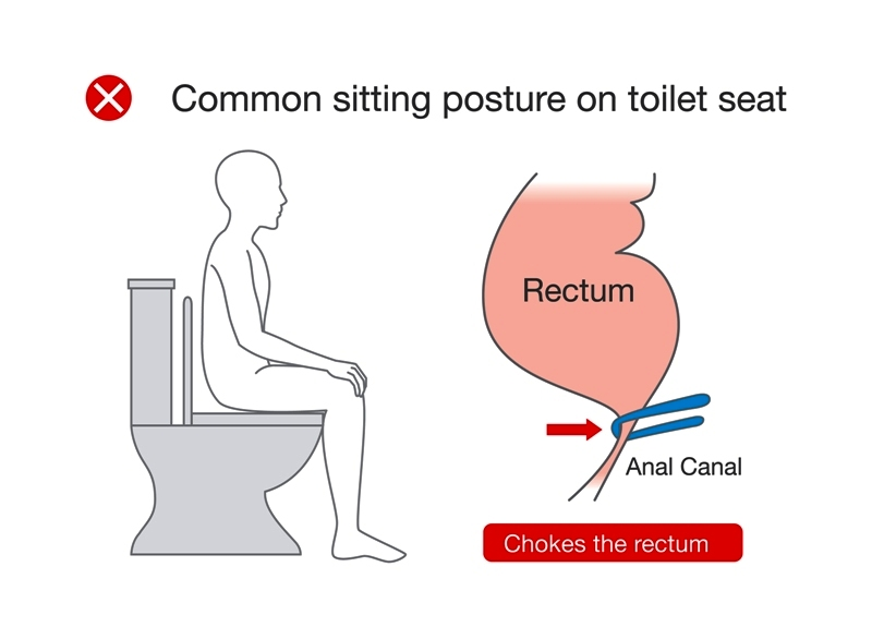 Common but wrong posture while sitting on toilet seat