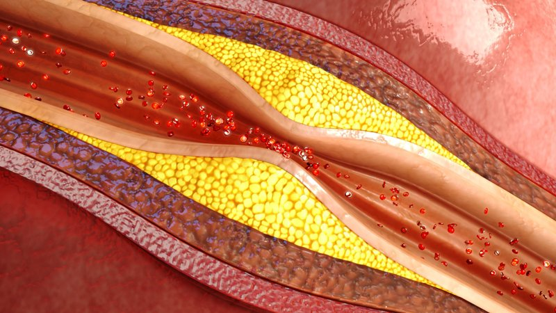 Plaque in blood vessels