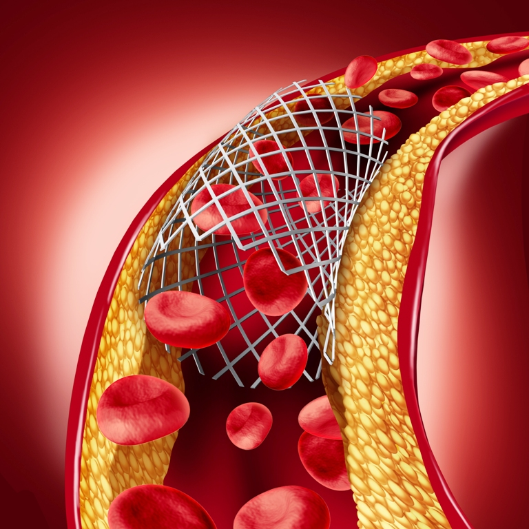 Stent implant concept as a heart disease treatment - 3D illustration