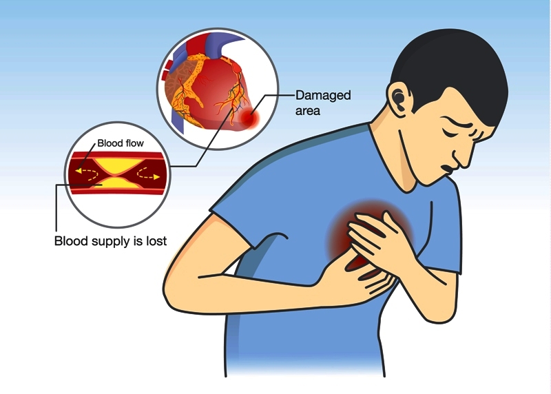 Man have early symptoms of heart attack in the form of angina