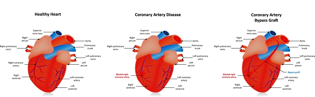Coronary Artery Bypass Graft (CABG) for treating angina