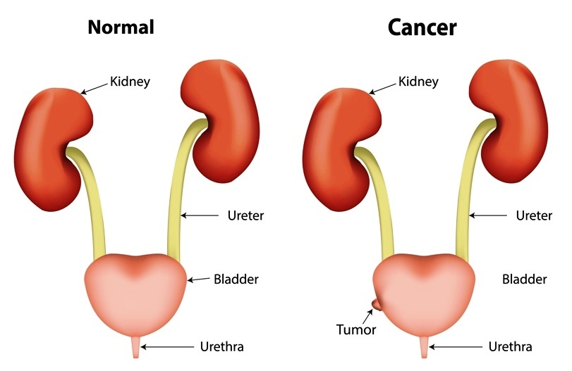Causes of blood in urine: Bladder cancer