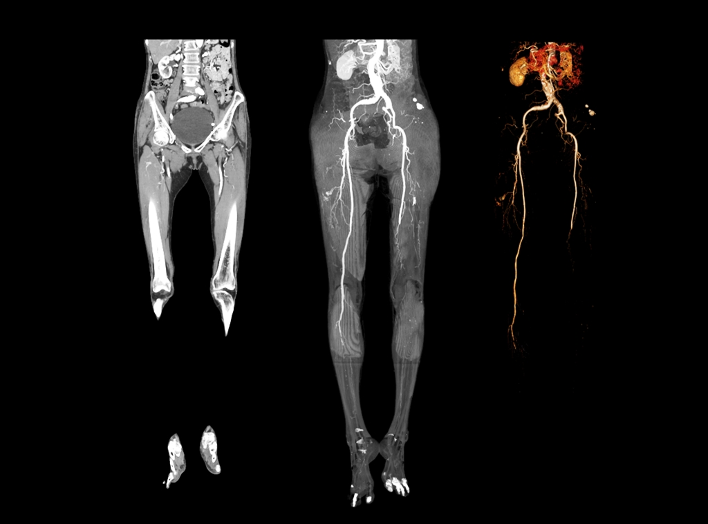 CT Scan imaging showing 2D and 3D rendering image of lower Extremity (lower limb)