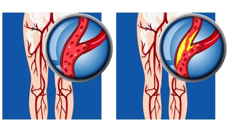 Peripheral arterial disease in lower limb
