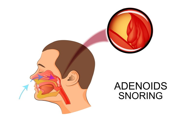 Snoring: A common reason of teeth grinding