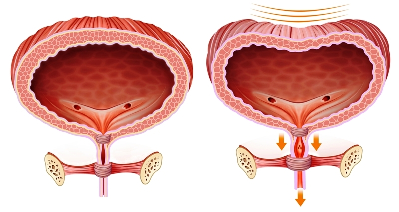 Comparative anatomical illustration of the bladder with problems of urine and normal retention
