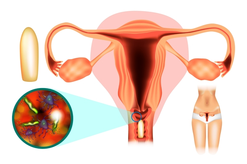 Treatment of female genital infections (vaginitis): Vaginal Suppositories