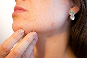 Acne Treatment Using Laser Therapy