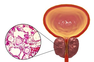 How is Enlarged Prostate (Benign Prostate Hyperplasia) Diagnosed?